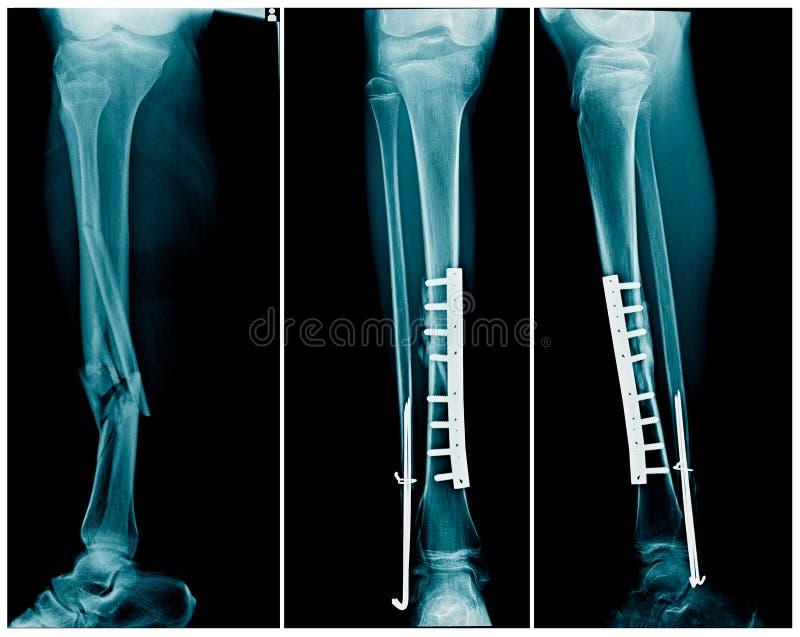 Bryta benet som båda benar ur med stolpeoperationfixering fotografering för bildbyråer