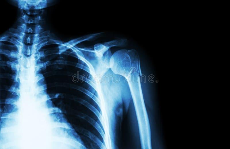 Bryta på halsen av humeruset (armben) (lämnade skuldran för filmen röntgenstrålen och förbigår område på rätsidan), royaltyfri fotografi