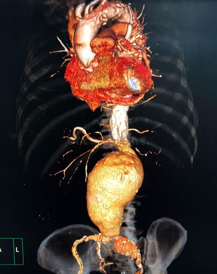brzuszny aneurysm obrazy royalty free