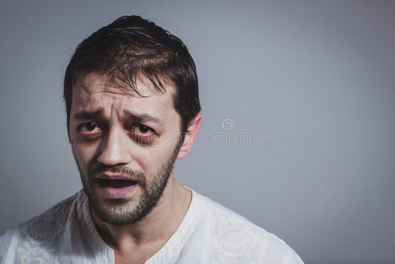 Brzydkiego młodego brodatego mężczyzna przyglądająca choroba fotografia stock