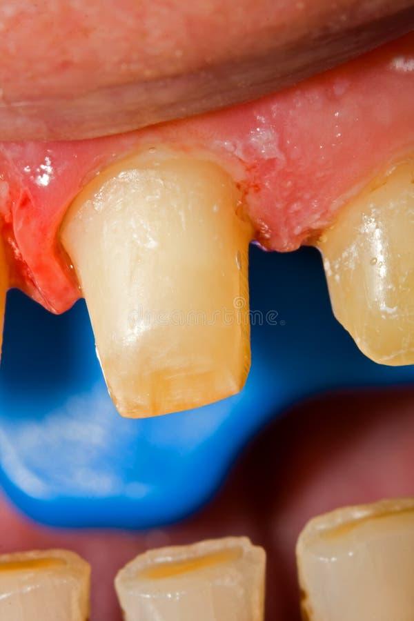 Buffed teeth - prosthetic rehabilitation