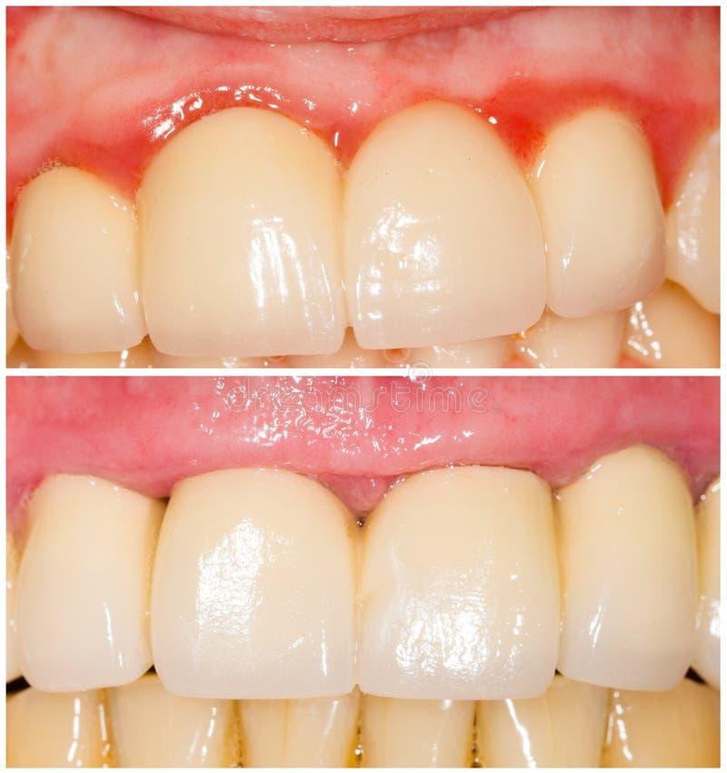 Buffing тангенс зубов и с плечом стоковое изображение rf