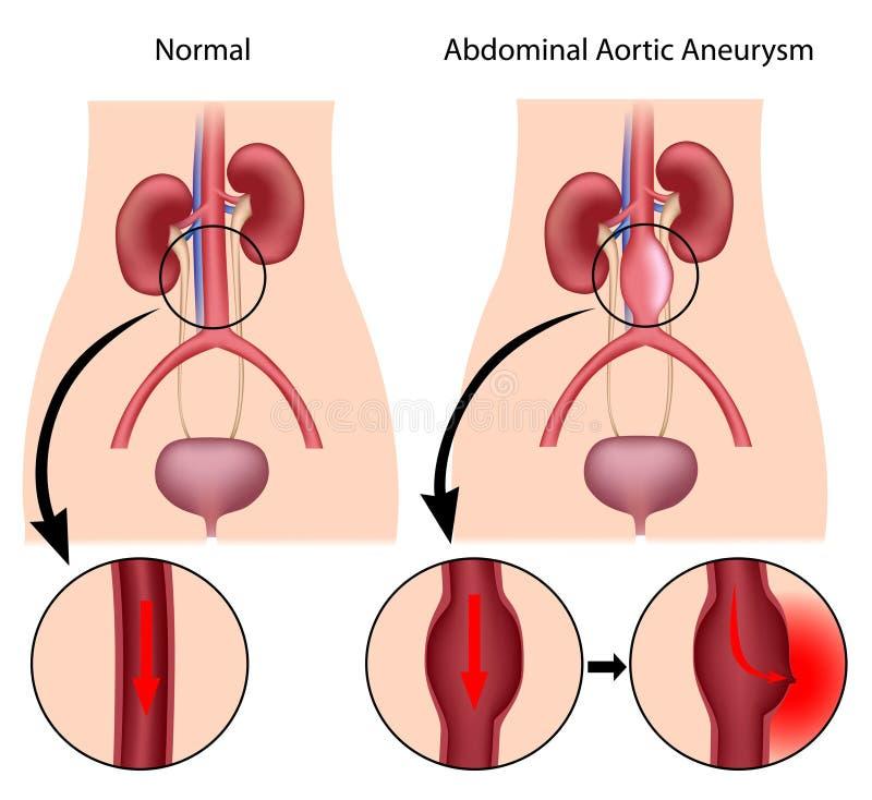 Buk- aortic aneurysm royaltyfri illustrationer