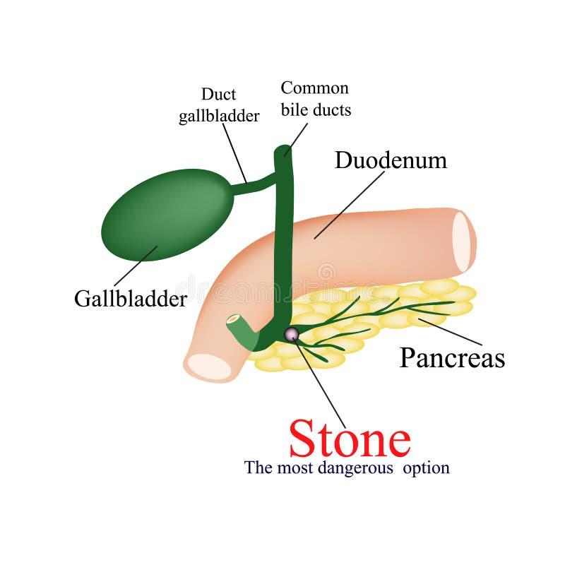 Bukspottkörtel- vresighet för sten - kanal farligt mest royaltyfri illustrationer