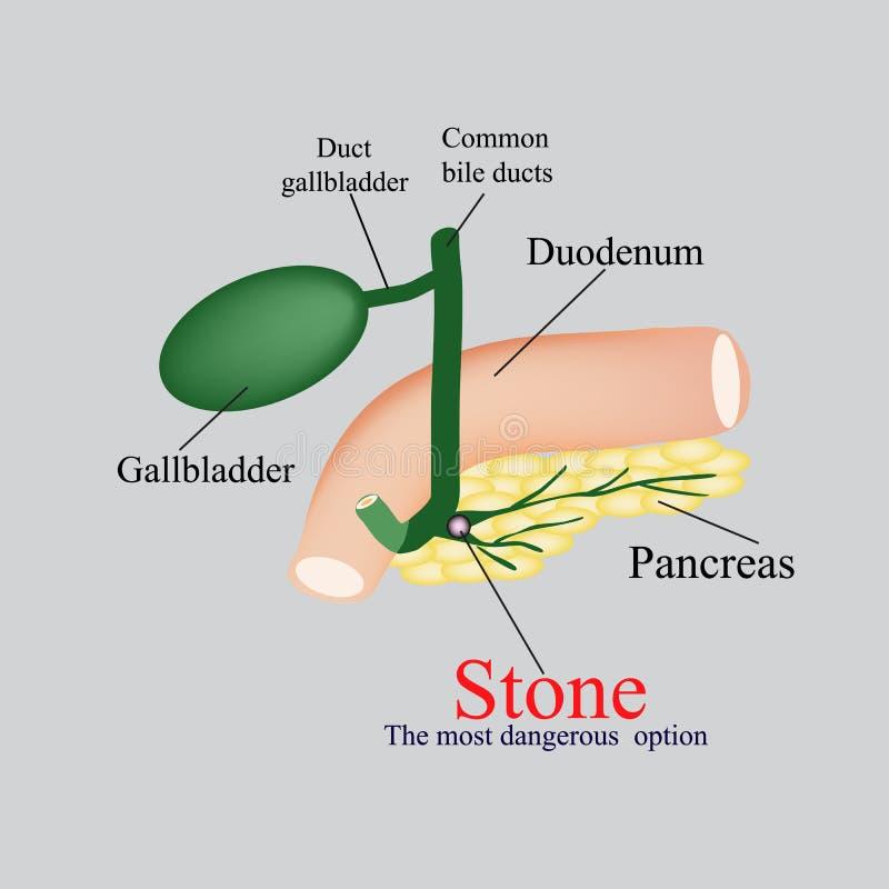 Bukspottkörtel- vresighet för sten - kanal Gallblåsan, duodenum, vresighetkanaler Vektorillustration på en grå bakgrund vektor illustrationer