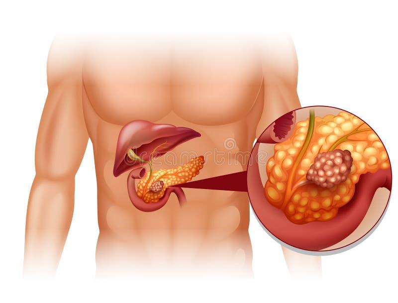 Bukspottkörtelcancer i människokropp royaltyfri illustrationer