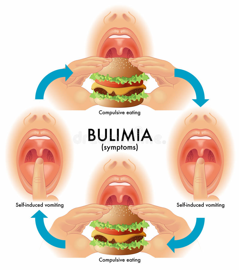 Bulimia royalty free illustration