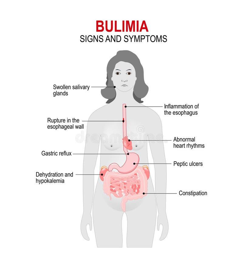 bulimia Sinais e sintomas ilustração royalty free