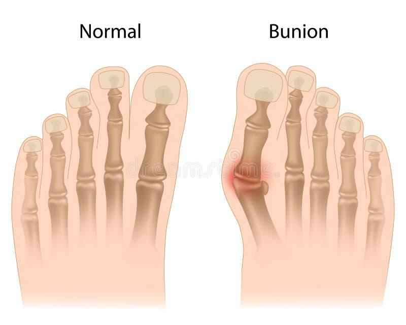 Bunion в ноге иллюстрация штока