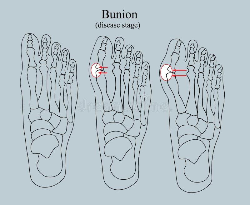 Bunion, choroby scena ilustracji