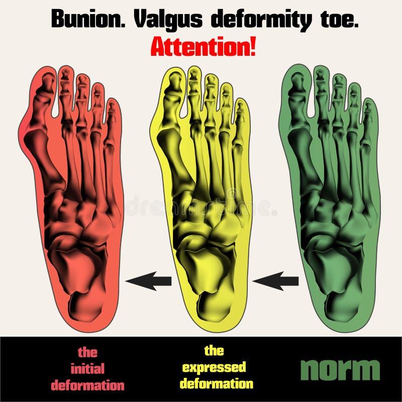 bunion Dedo del pie de la deformidad de Valgus stock de ilustración