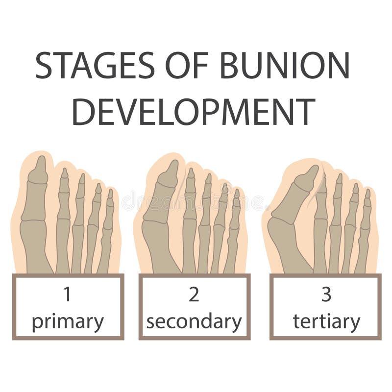 Bunion development stock photos