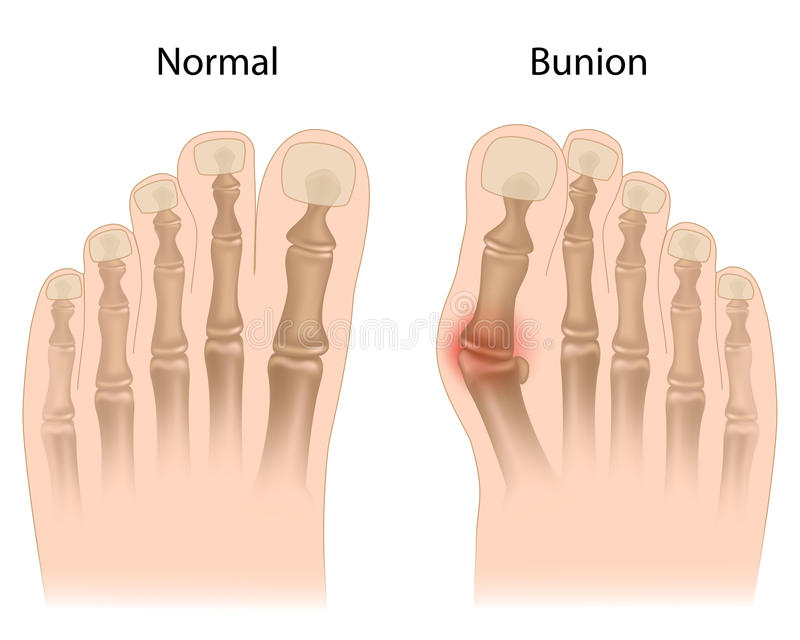 Bunion in foot