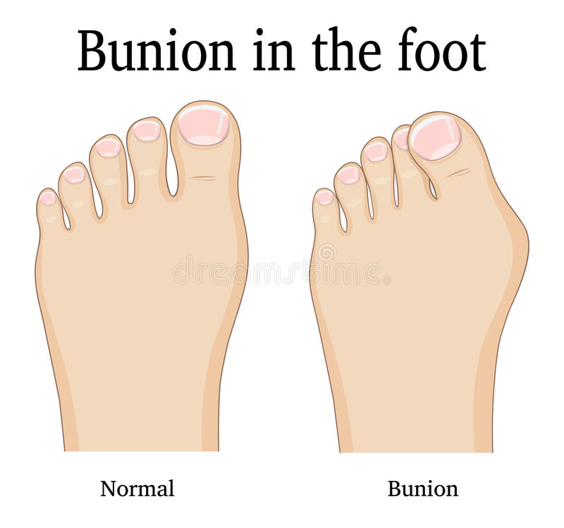 Bunion i foten royaltyfri illustrationer