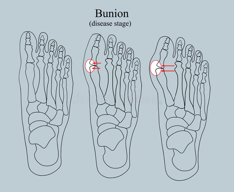 Bunion sjukdometapp stock illustrationer