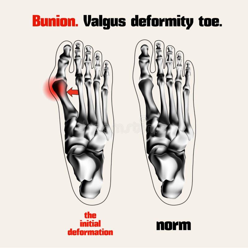 bunion Valgus deformaci palec u nogi ilustracja wektor