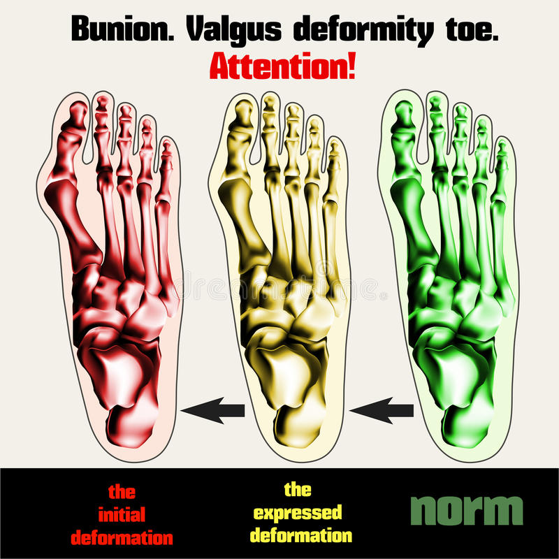 bunion Valgus missbildningtå stock illustrationer