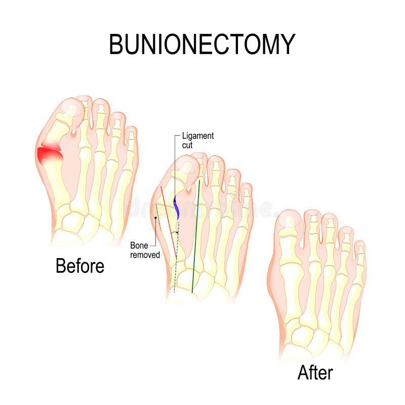 Bunionectomy Chirurgie, zum von Pathologien des Fußes zu korrigieren lizenzfreie abbildung