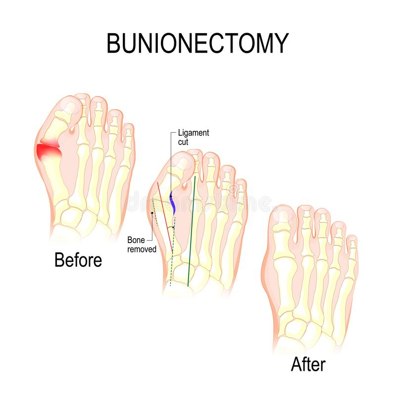 Bunionectomy. surgery to correct pathologies of the foot. Bunionectomy is a procedure to correct of pathologies and deformity of the joint connecting the big royalty free illustration