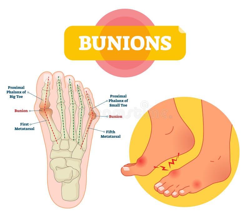 Bunionsvektorillustration Märkt intrig för förklaring för oordning för fotben royaltyfri illustrationer