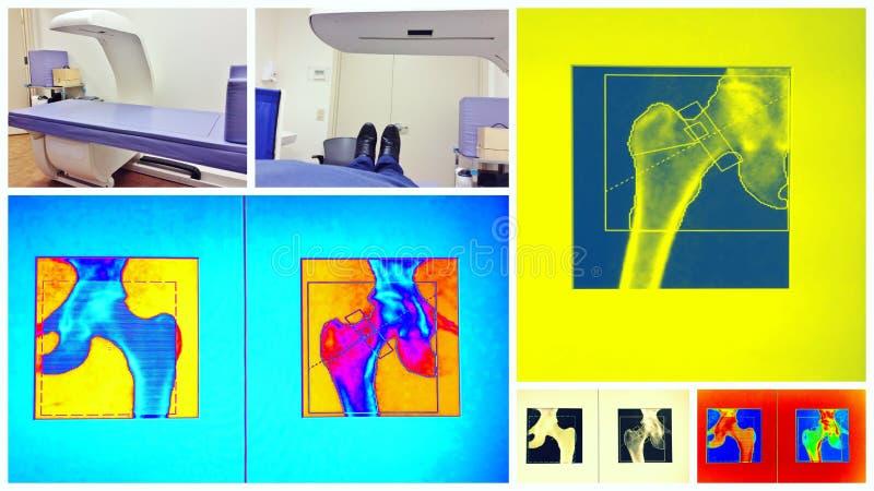 Bunte Collage des Knochendichtescans lizenzfreies stockfoto