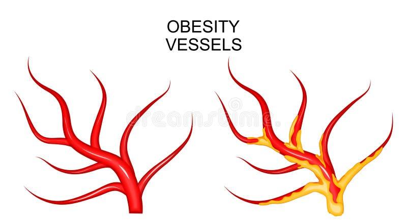 Buques sanos y obesos ilustración del vector