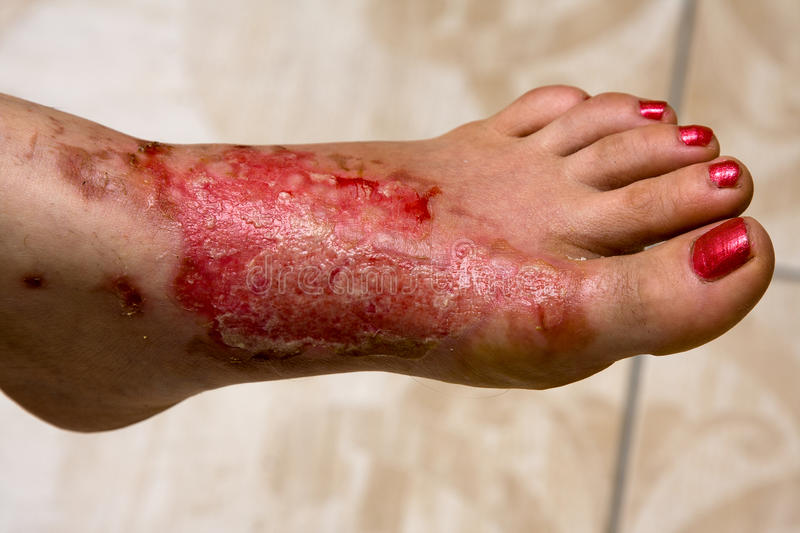 Burn feet royalty free stock images