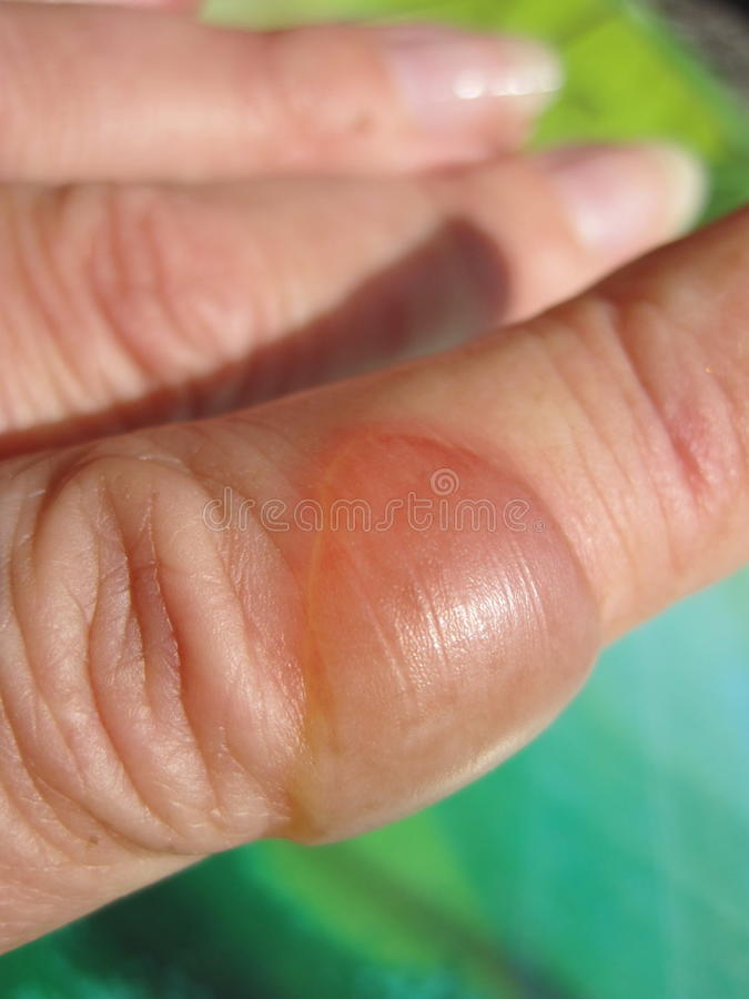Burn finger. With blister, can use as background royalty free stock images