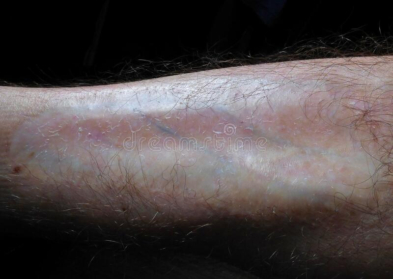 Burn scar on male leg. Caused by a fire. Close up macro photography royalty free stock photography