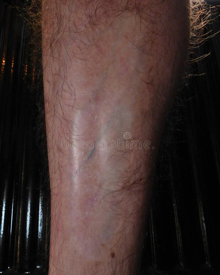 Burn scar on male leg. Caused by a fire. Close up macro photography royalty free stock photo
