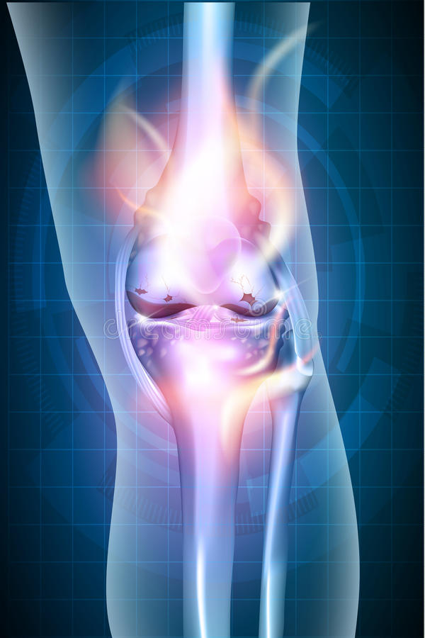 Burning leg knee joint royalty free illustration