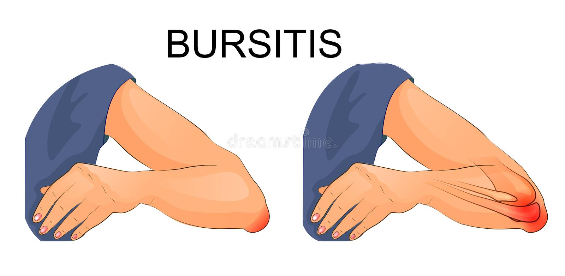 Bursitis της ένωσης αγκώνων ελεύθερη απεικόνιση δικαιώματος