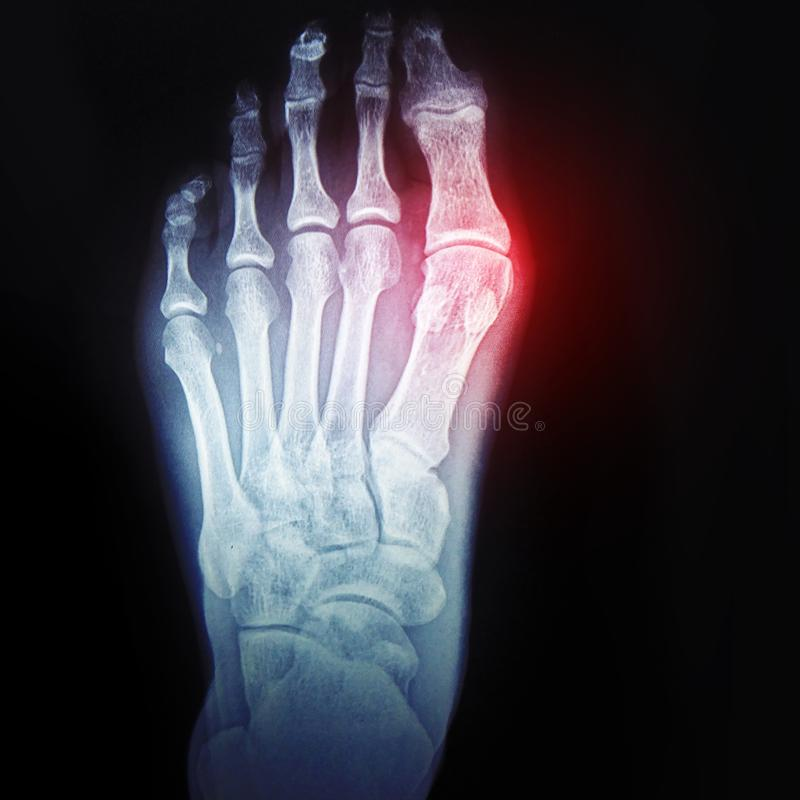Bursitis of the big toe. Callus on the leg. X-ray of the foot with the designation of the sore spot stock images