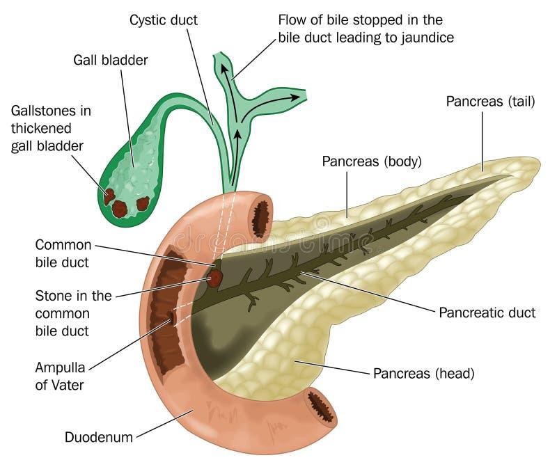 Cálculos biliares en vesícula biliar ilustración del vector