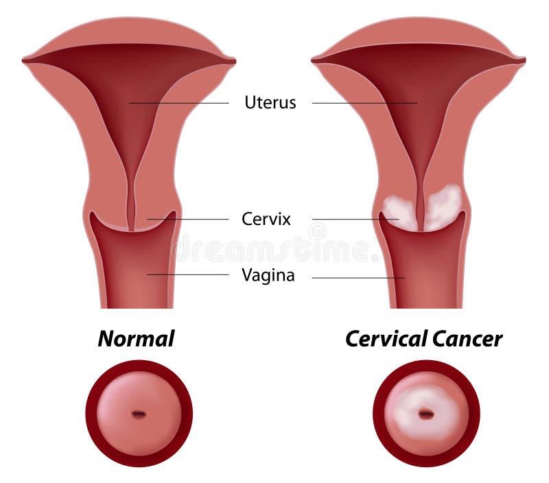 Cáncer de cuello del útero ilustración del vector