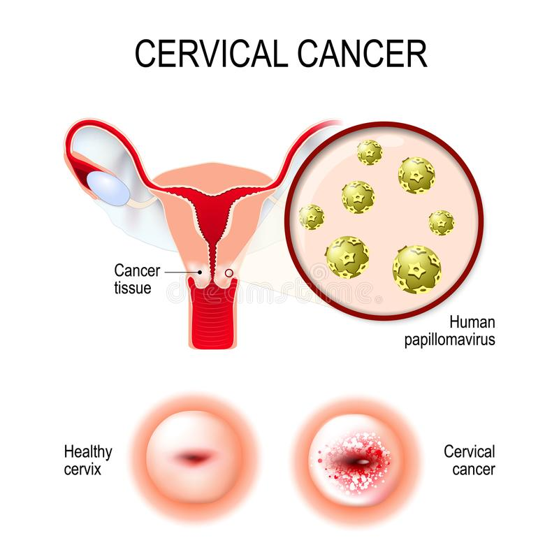 Cáncer de cuello del útero útero, cerviz, y primer del papil humano stock de ilustración
