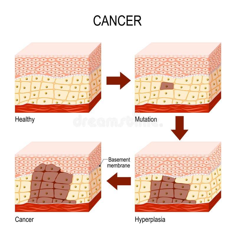 cáncer de las células normales a la mutación, a la hiperplasia, y a Malignan ilustración del vector