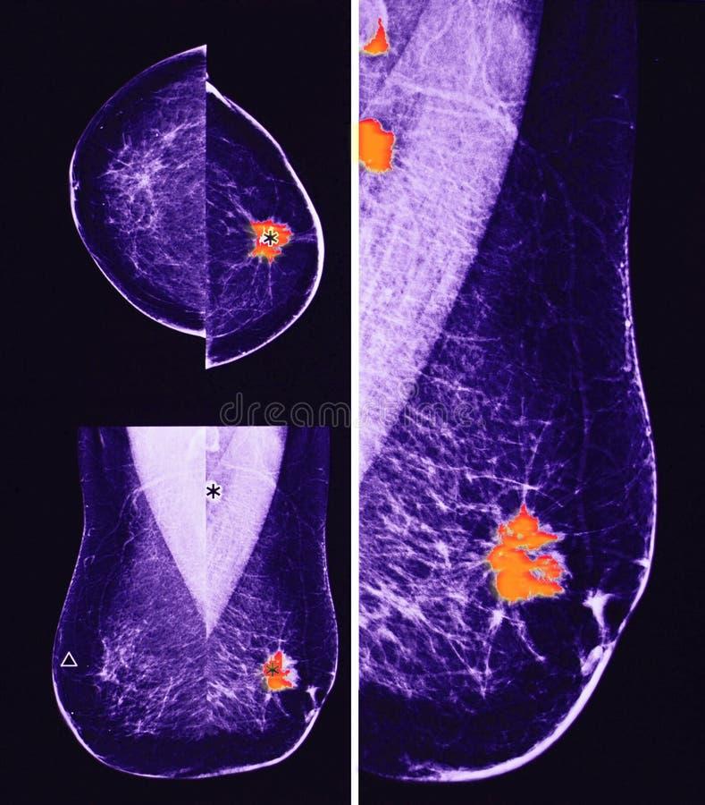 Cáncer de pecho metastático, mamografía imagen de archivo