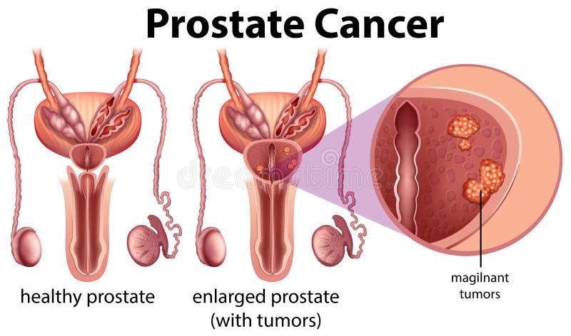 Cáncer de próstata en el fondo blanco ilustración del vector