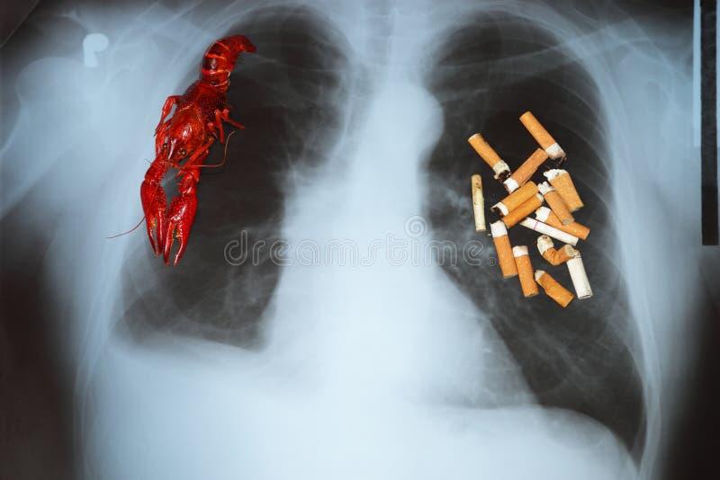 Cáncer de pulmón fotos de archivo libres de regalías