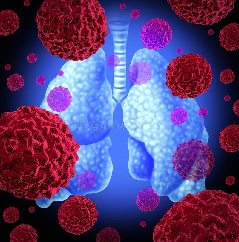 Cáncer de pulmón ilustración del vector