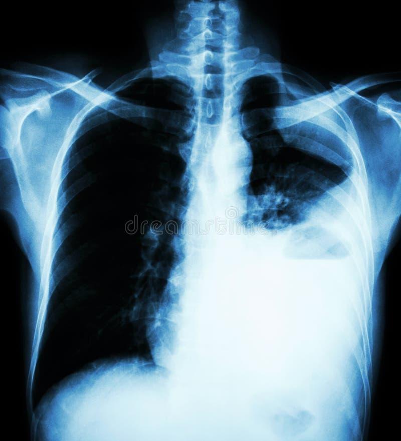 Cáncer de pulmón (radiografía de la película del PA del pecho vertical: muestre la efusión pleural en el pulmón izquierdo debido  imagen de archivo