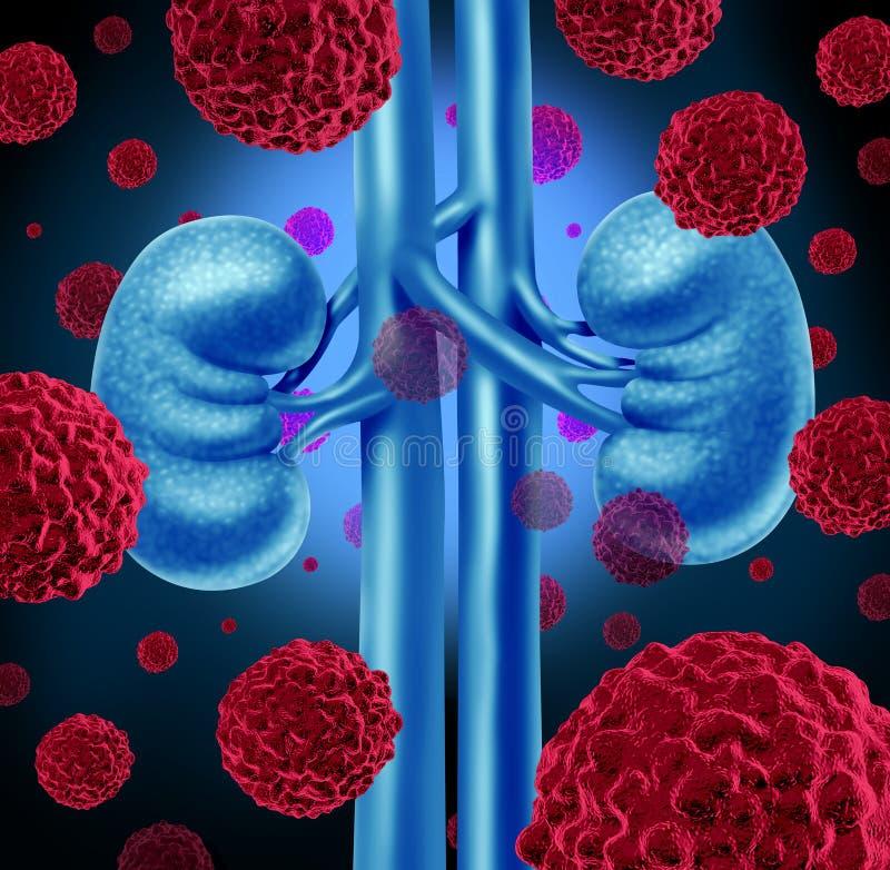Cáncer del riñón stock de ilustración