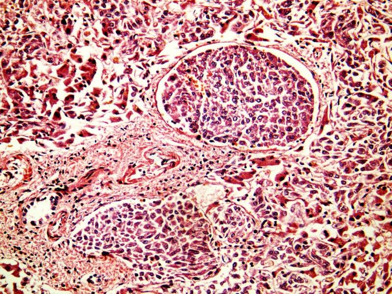 Cáncer hepatocelular del hígado de un ser humano fotos de archivo libres de regalías