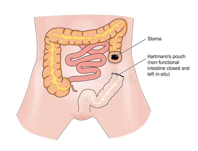 Cáncer y estoma del intestino stock de ilustración