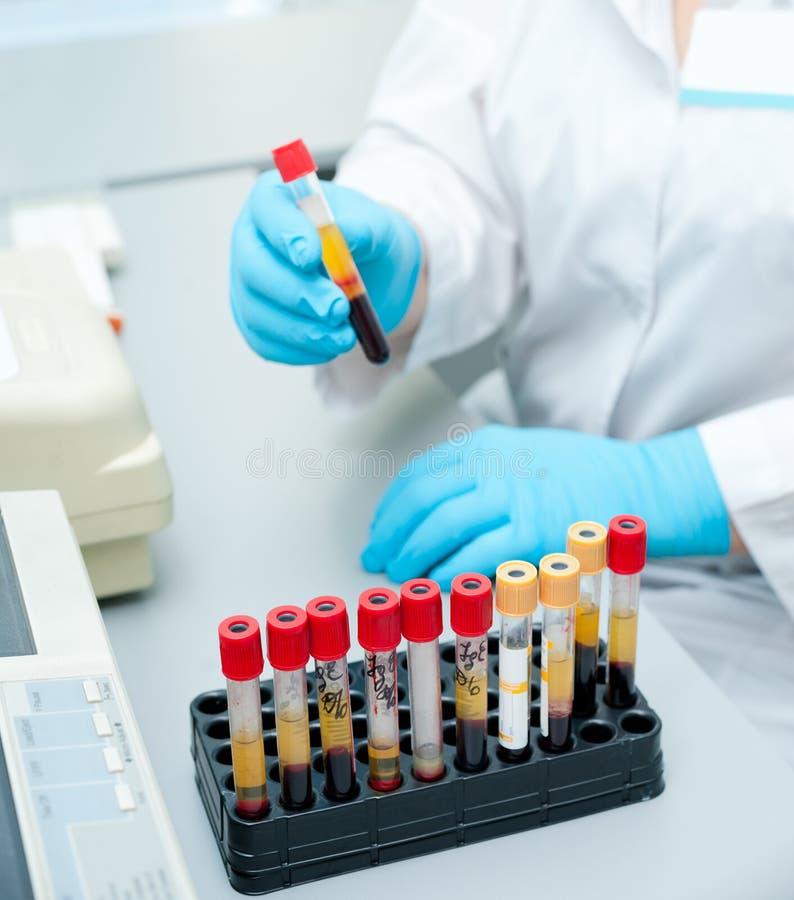 Câmaras de ar de teste com sangue foto de stock royalty free