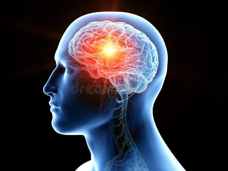 Câncer cerebral humano ilustração royalty free
