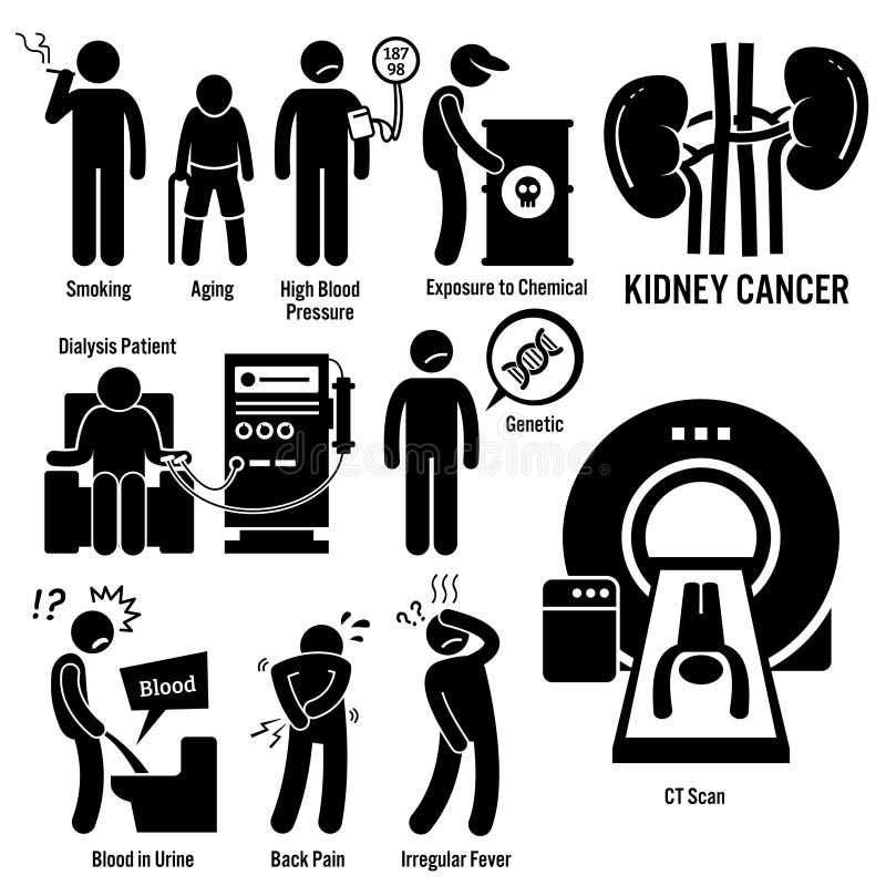 Câncer Clipart do rim ilustração do vetor