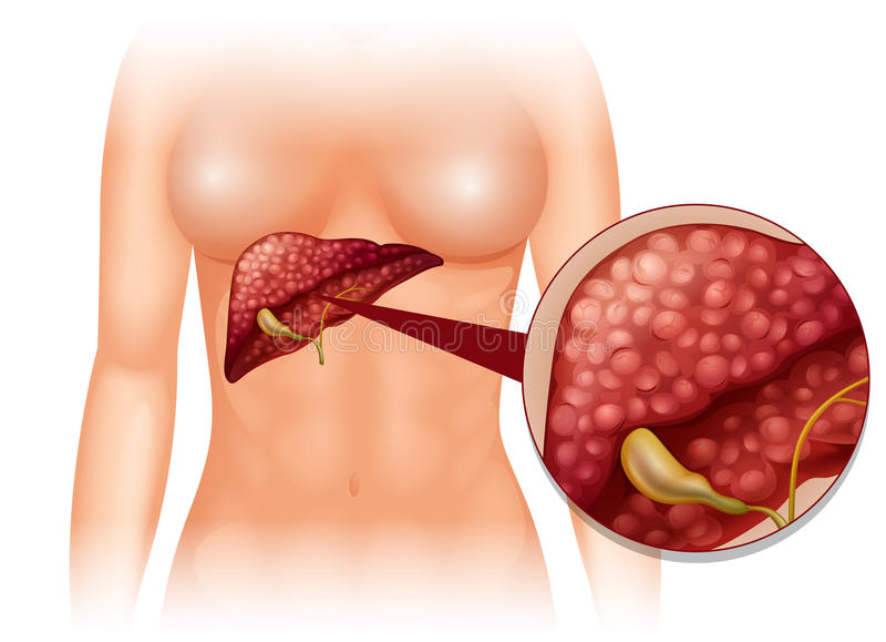 Câncer da esclerose no corpo humano ilustração stock