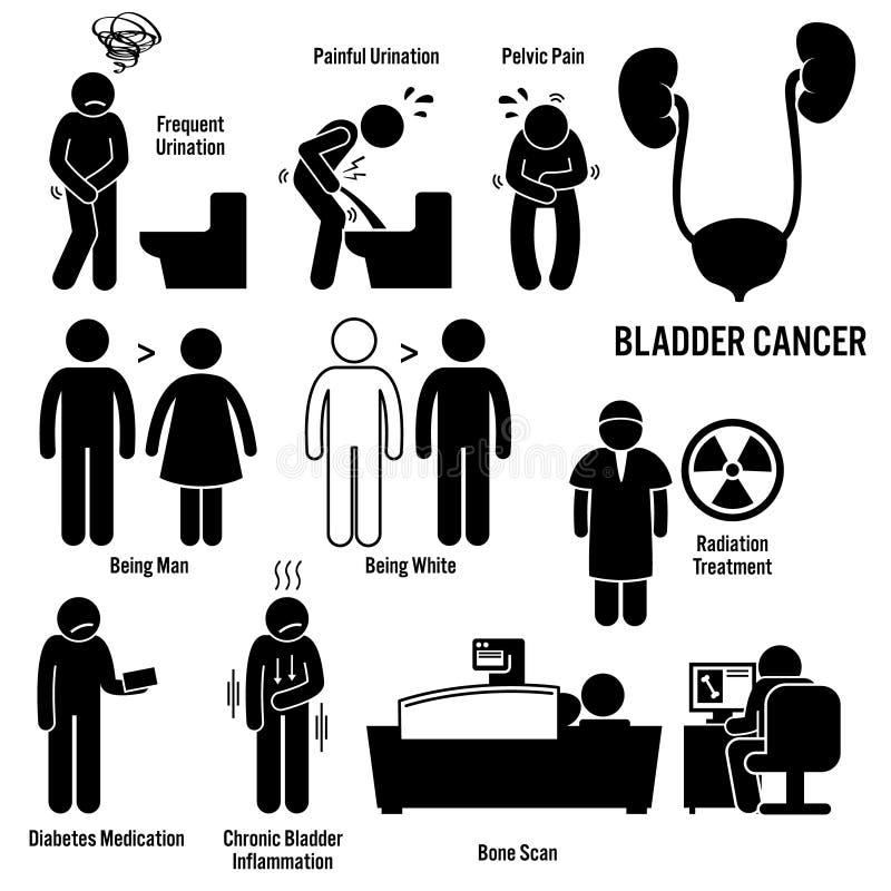 Câncer de bexiga Clipart ilustração stock